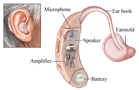 hearing-aid-works