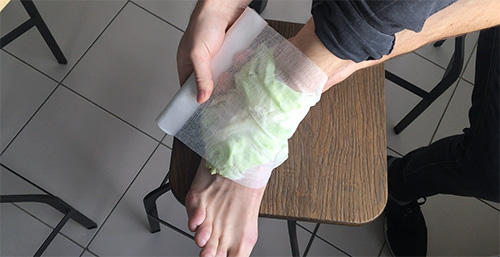 How to Make Cabbage Bandages to Treat Inflammation and Joint Pain