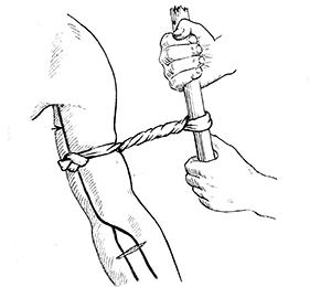 Tourniquet for gunshot wound