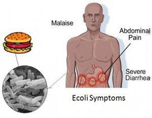 ecoli-symptoms