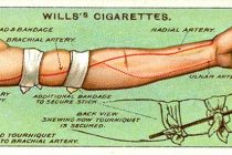 14 Lost Emergency Care Tips From 100 Years Ago