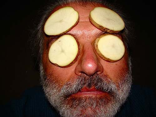 potato slices for headaches