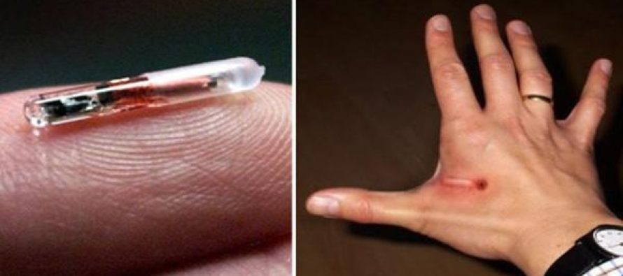 Why People Will Happily Line Up to be Microchipped Like Dogs